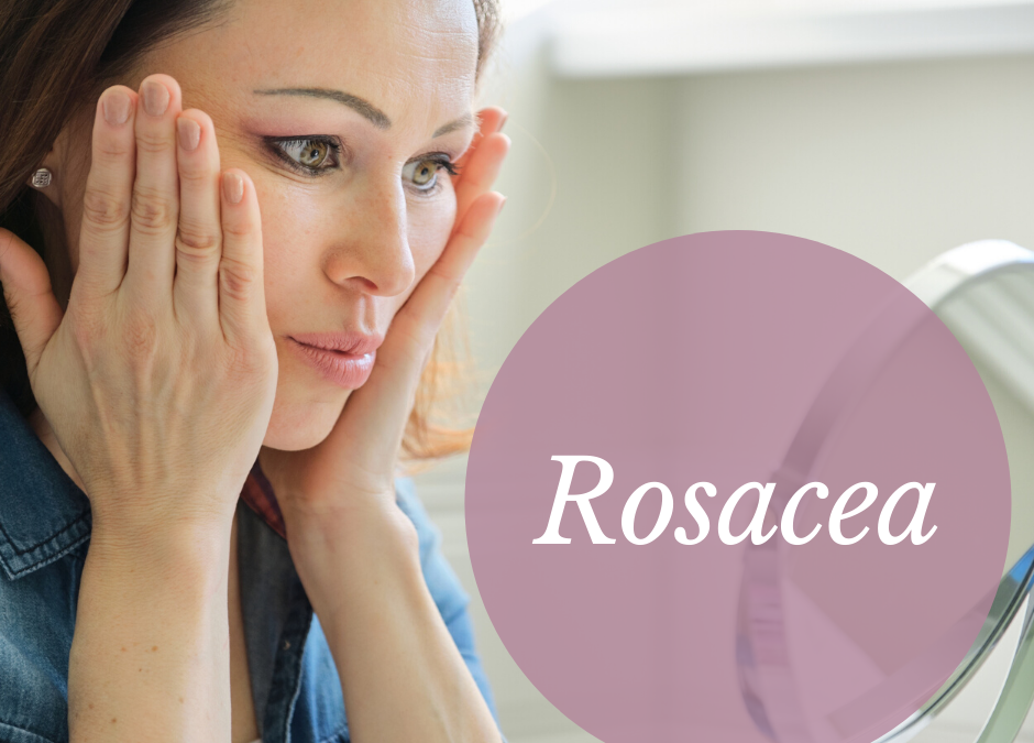 Is Rosacea Stopping Your From Putting Your Best Face Forward?